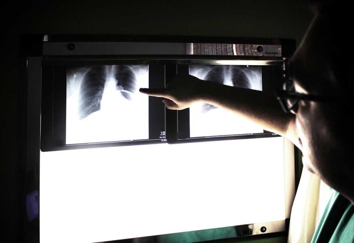 rentgen pleców